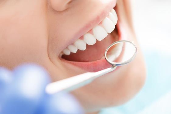 Zahnästhetik - Schöne Zähne