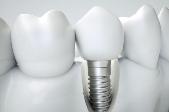 Implantate, Zahnersatz