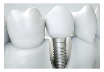 Zahn Implantat