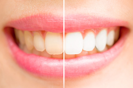 Bleaching, weiße Zähne